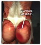 Beverly Hills Chiropractic--gluteus maximus